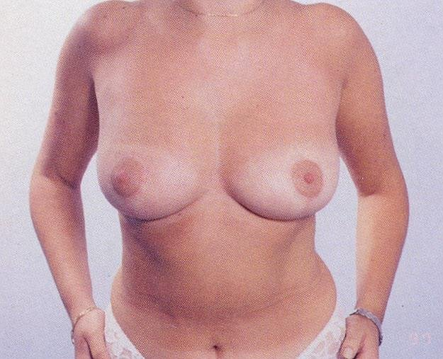 Чем отличается силиконовая грудь от настоящей