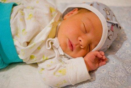 желтуха новорожденных фото