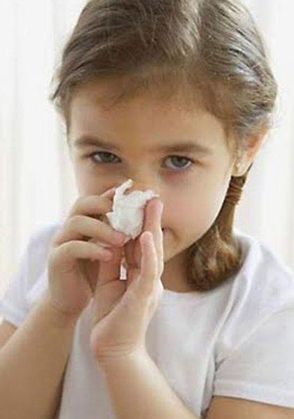 Заеды в уголках рта лечение у детей мазь