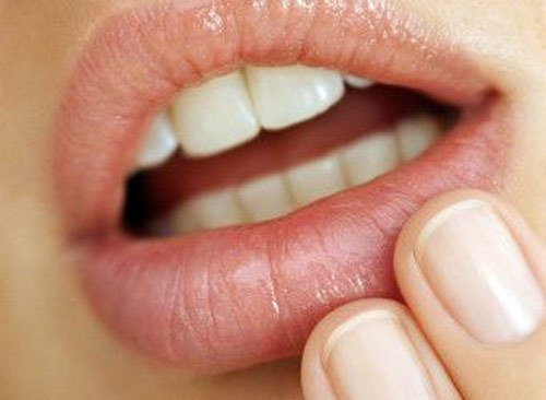Герпес на губах Как лечить герпес на губах и какое