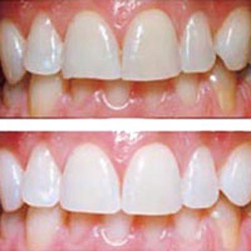 как можно отбелить зубы содой