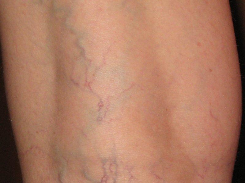 Венозная сеточка на ногах лечение в домашних условиях фото
