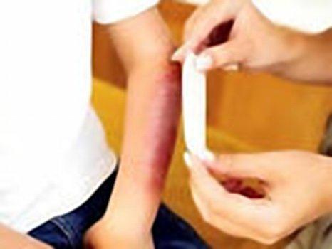 Как лечить ожог у ребенка народными средствами