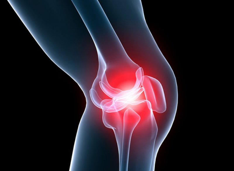Артроз коленного сустава сабельник физ упражнение шалтай болтай для тазобедренных суставов