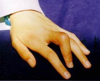 Контрактура сустава кисти, лечение магазин ортопедический бандаж голено-стопного сустава