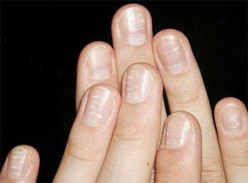 Пятнышки на ногтях фото
