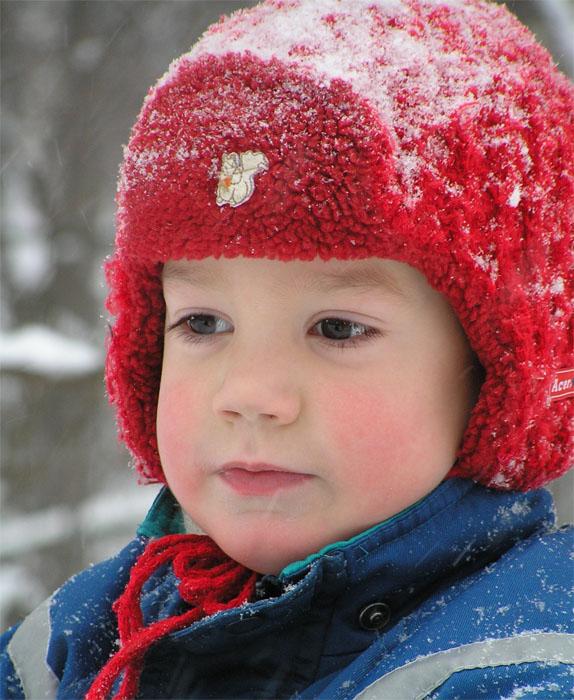 аллергия на мороз на лице у взрослого