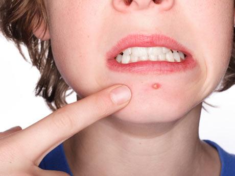 Как ухаживать за кожей лица при угревой сыпи  Kak-uhazhivat-za-kozhey-lica-pri-ugrevoy-sypi