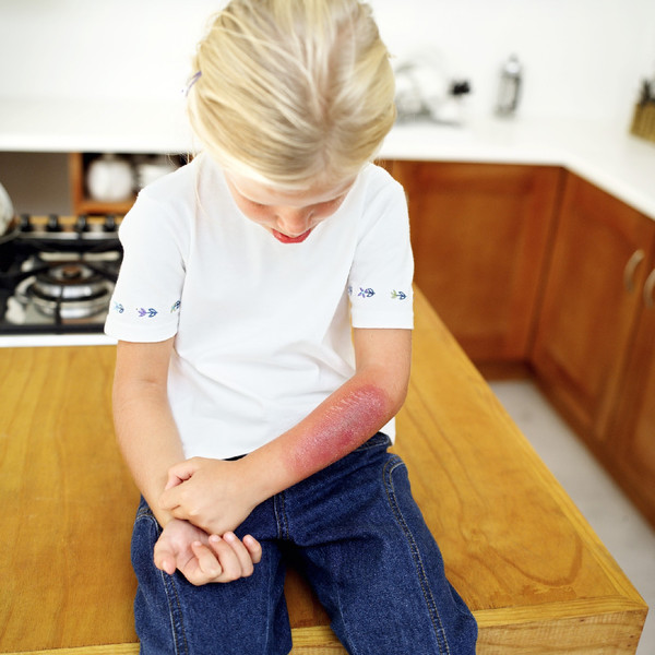 Ожог от утюга у ребенка в домашних условиях