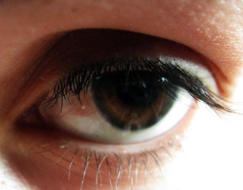 Глаз воспалился после простуды что делать 187