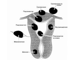 Доброкачественные опухоли матки