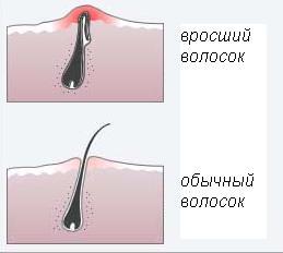 средства против вросших волос после эпиляции