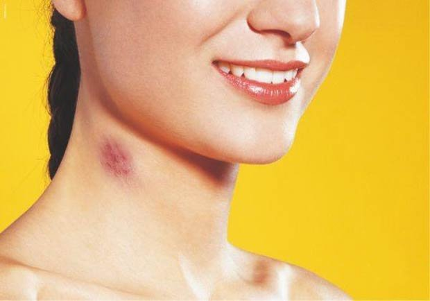 Папилломавирус признаки у женщин