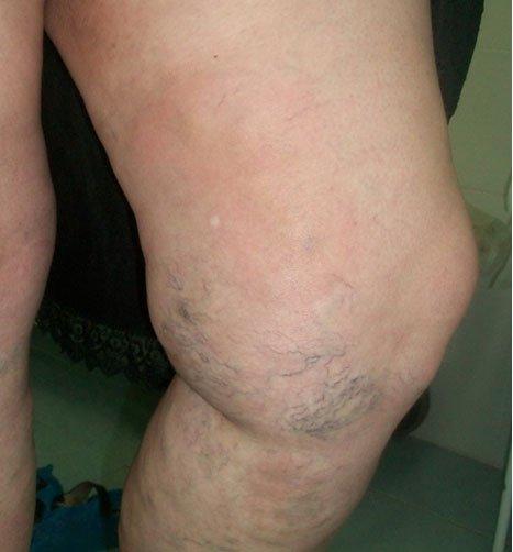 В ноге болит вены