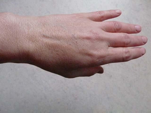 как выглядят цыпки на руках фото