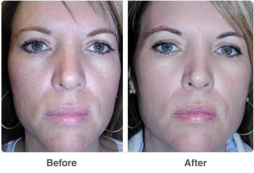 отзывы химический пилинг от морщин и неровностей на коже