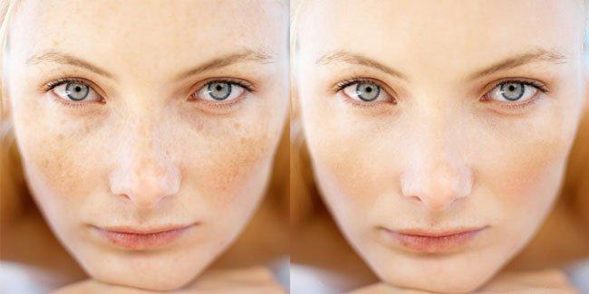 Чем можно удалить пигментное пятно на лице