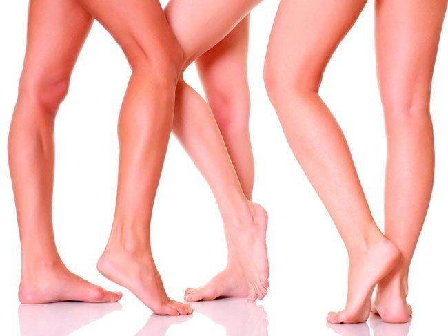 Как лечить варикоз на ногах у женщин народными средствами