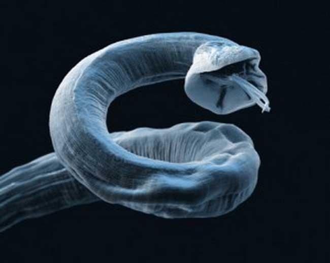 черви в теле человека фото и видео