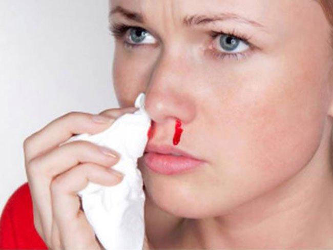 Фото К чему снится кровь из носа девушке