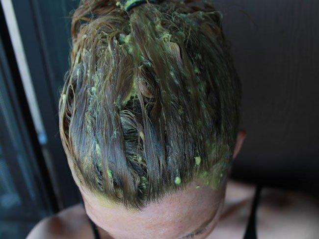 Волосы средства для быстрого роста волос аптечные средства когда-то