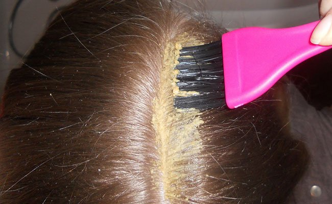 Лечение выпадения волос по болотову