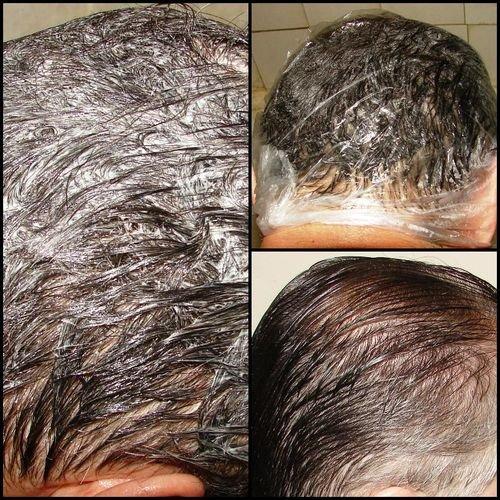 Причина выпадения волос у детей 6 лет