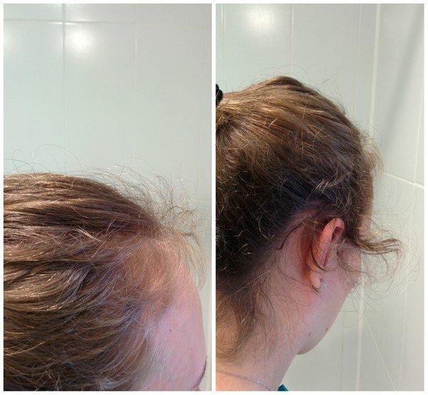 Волосы помогают спреи для роста волос аптечные