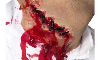 Как сделать клей для ран