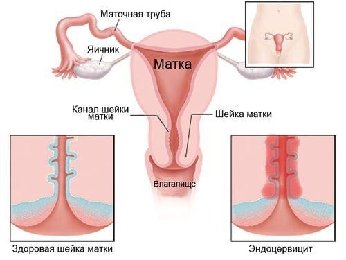 Воспаление шейки матки: причины, симптомы, лечение