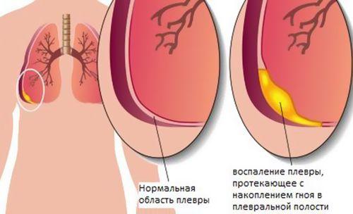Если от остеохондроза болит кишечник