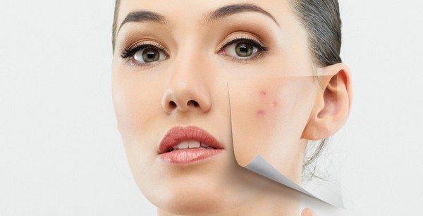 Пигментные пятна коже лица