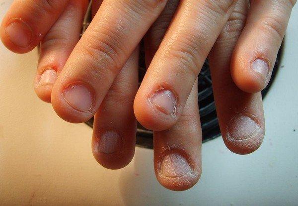 Страшные ногти при наращивании фото