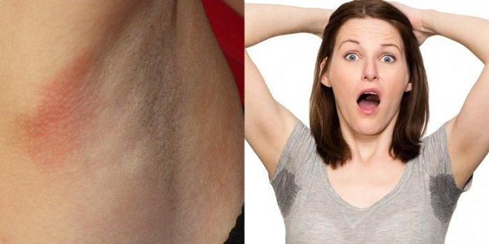аллергия под мышками у женщин