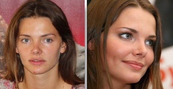 лиза боярская фото до пластики и после фото