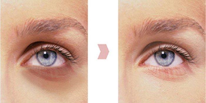 Как убрать синяки под глазами рекомендации