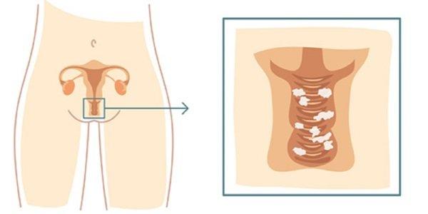 Почему появляется молочница у женщин как с этим заболеванием бороться