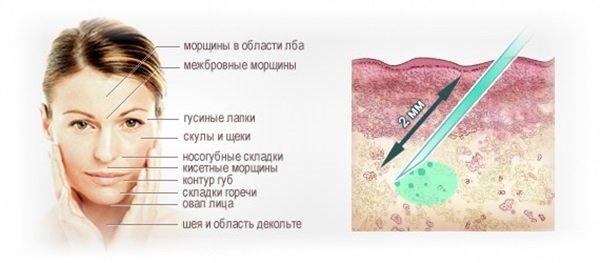 Мезотерапия аквашайн