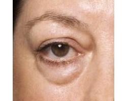 Как устранить мешки под глазами?