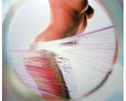 Наиболее эффективные способы борьбы с целлюлитом