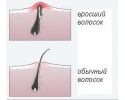 Как бороться с вросшим волосом