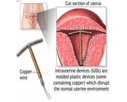 Методы контрацепции: внутриматочная спираль