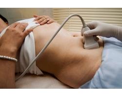 Точное обследование на бесплодие по дням менструального цикла