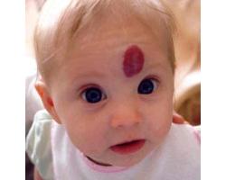 Гемангиома у детей и ее лечение