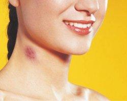Как избавиться от засосов на шее и груди