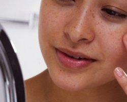Берем под контроль жирную кожу лица