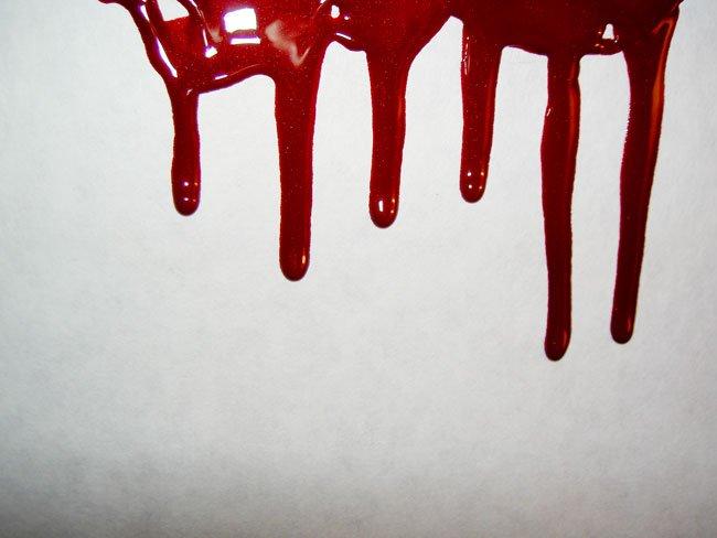 К чему снится кровь из половых органов фото