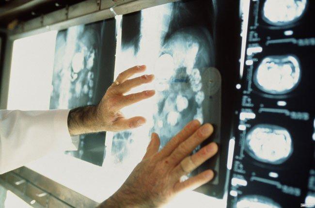 Самый не поддающийся лечению рака