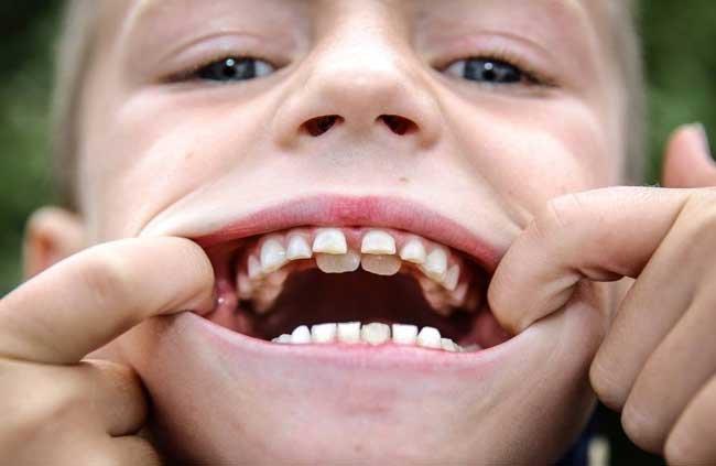 сонник у ребенка выпал зуб