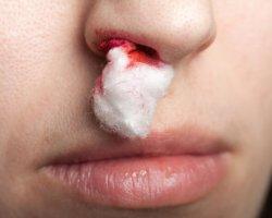 Видеть кровь из носа во сне, что бы это значило?